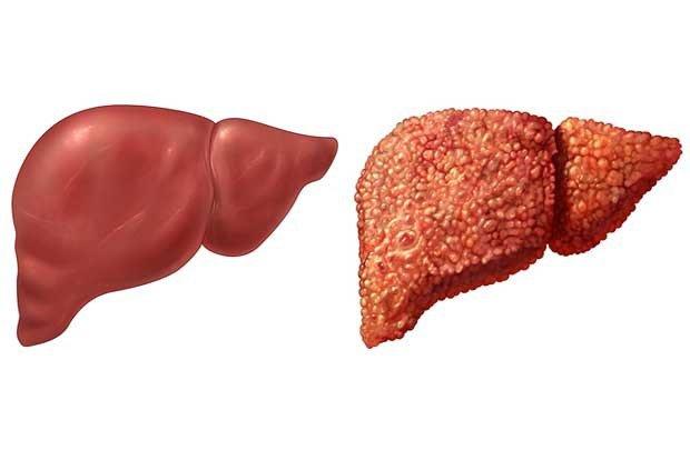 Điều trị bệnh viêm gan B theo từng trường hợp cụ thể - ảnh 3