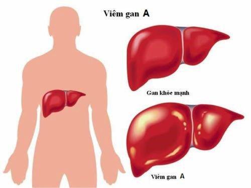 Viêm gan virus: Những điều bạn cần biết - ảnh 1